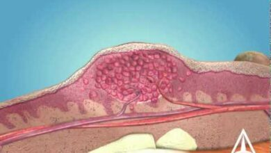 Photo of Skin Warts – 3D Medical Animation